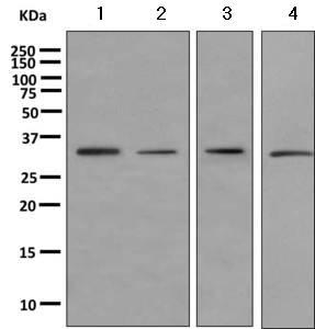 Western blot - Anti-Emerin antibody [EPR11071] (ab156871)