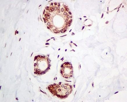 Immunohistochemistry (Formalin/PFA-fixed paraffin-embedded sections) - Anti-Emerin antibody [EPR11071] (ab156871)