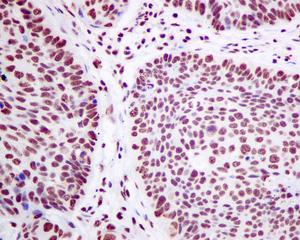 Immunohistochemistry (Formalin/PFA-fixed paraffin-embedded sections) - Anti-SF3A3 antibody [EPR10020] (ab156873)