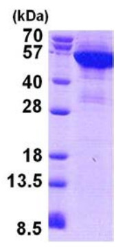 SDS-PAGE - Cytokeratin 8 protein (His tag) (ab156970)