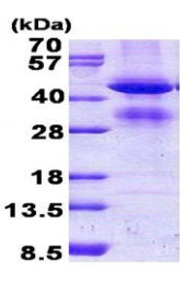 SDS-PAGE - GCAT protein (His tag) (ab156971)