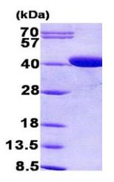 SDS-PAGE - Coproporphyrinogen Oxidase (CPOX) protein (His tag) (ab156972)