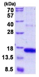 SDS-PAGE - GOLGA7 protein (His tag) (ab156974)