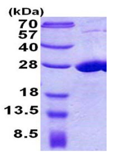 SDS-PAGE - COMMD7 protein (His tag) (ab156975)