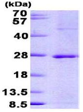SDS-PAGE - JDP2 protein (His tag) (ab156981)