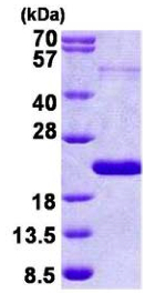 SDS-PAGE - THRSP protein (His tag) (ab156982)