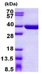 SDS-PAGE - SULT1C4 protein (His tag) (ab156984)