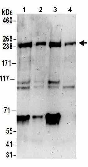 Western blot - Anti-NUP205 antibody (ab157090)
