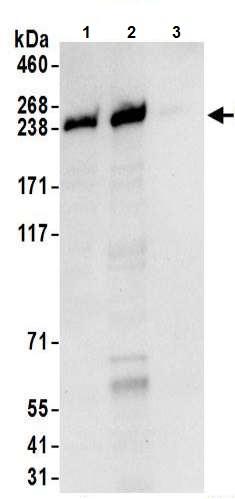 Immunoprecipitation - Anti-NUP205 antibody (ab157090)