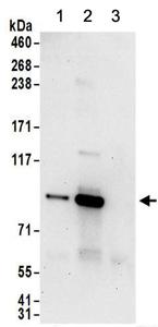 Immunoprecipitation - Anti-PNPT1 antibody (ab157109)