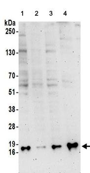 Western blot - Anti-SNRPD3 antibody (ab157118)