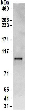 Immunoprecipitation - Anti-Methionyl tRNA synthetase antibody (ab157119)