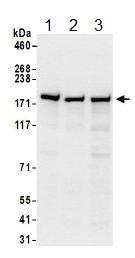 Western blot - Anti-Glutamyl Prolyl tRNA synthetase antibody (ab157129)