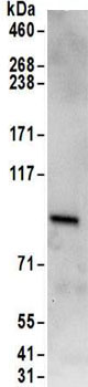 Immunoprecipitation - Anti-RAVER1 antibody (ab157131)
