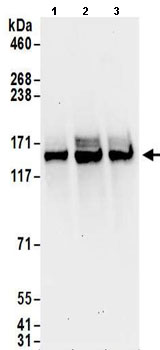 Western blot - Anti-HAUSP / USP7 antibody (ab157132)