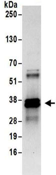 Immunoprecipitation - Anti-HNRNPA0 antibody (ab157133)