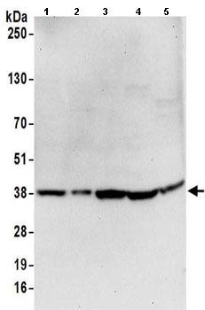 Western blot - Anti-GAPDH antibody (ab157156)