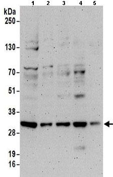 Western blot - Anti-PSME3 antibody (ab157157)