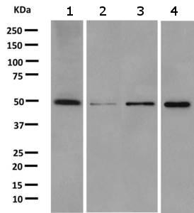 Western blot - Anti-CMAS antibody [EPR10485] (ab157189)