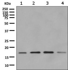 Western blot - Anti-RPS15 antibody [EPR11104] (ab157193)