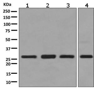 Western blot - Anti-SPR antibody [EPR9290] (ab157194)