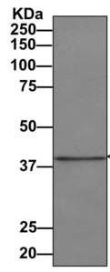 Immunoprecipitation - Anti-UPB1 antibody [EPR9132] (ab157195)