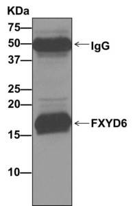 Immunoprecipitation - Anti-FXYD6 antibody [EP9005] (ab157196)