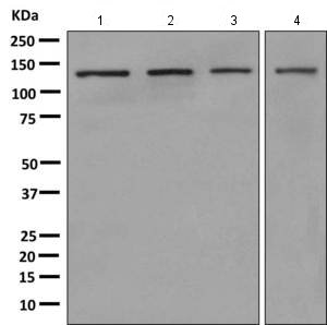 Western blot - Anti-PLCL1 antibody [EPR11213] (ab157200)