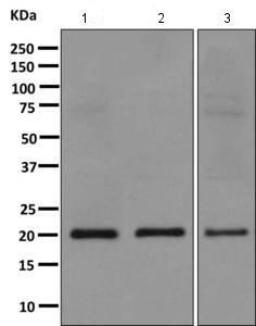Western blot - Anti-RBBP9 antibody [EPR9905] (ab157202)