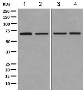 Western blot - Anti-PIGS antibody [EPR11275(B)] (ab157211)