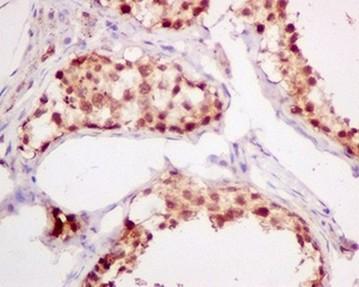 Immunohistochemistry (Formalin/PFA-fixed paraffin-embedded sections) - Anti-ADRM1 antibody [EPR11450(B] (ab157218)