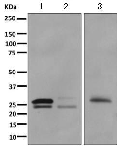 Western blot - Anti-Chymotrypsin-like protease antibody [EPR11490(B)] (ab157219)