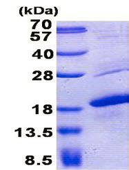 SDS-PAGE - MelanA protein (His tag) (ab157272)