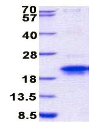 SDS-PAGE - TMEM149 protein (His tag) (ab157292)