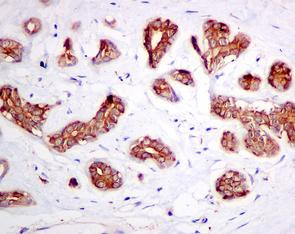 Immunohistochemistry (Formalin/PFA-fixed paraffin-embedded sections) - Anti-ATP6V1D antibody [EPR11326(B)] (ab157458)