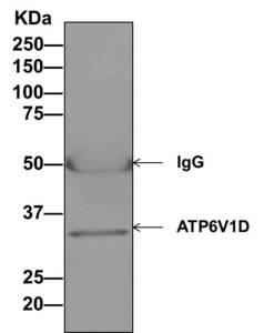 Immunoprecipitation - Anti-ATP6V1D antibody [EPR11326(B)] (ab157458)