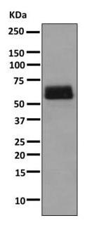 Western blot - Anti-TPA Tissue Plasminogen Activator antibody [EPR7232(2)(ABC)] (ab157469)
