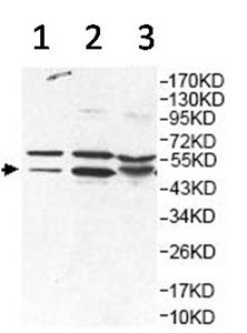Western blot - Anti-HNRPH2 antibody (ab157498)
