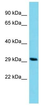 Western blot - Anti-C14orf105 antibody - C-terminal (ab157612)