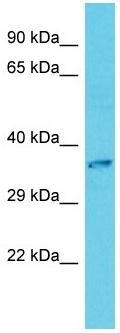 Western blot - Anti-CLNMT antibody - C-terminal (ab157664)