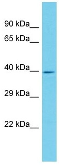 Western blot - Anti-ANKRD16 antibody - N-terminal (ab157683)