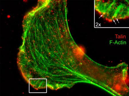 Immunocytochemistry/ Immunofluorescence - Anti-Talin 1 antibody [8D4] (ab157808)