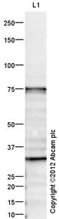 Western blot - Anti-PADI2 / PAD2 antibody (ab16478)