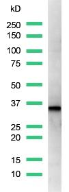 Western blot - Cyclin D1 antibody [SP4] (ab16663)