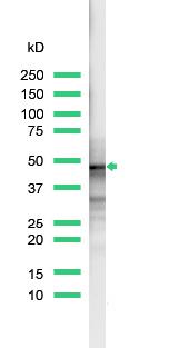 Western blot - CD23 antibody [SP23] (ab16702)