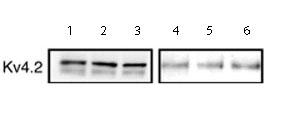 Western blot - Kv4.2 antibody (ab16719)