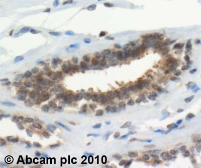 Immunohistochemistry (Formalin/PFA-fixed paraffin-embedded sections) - TXNRD1 antibody (ab16840)