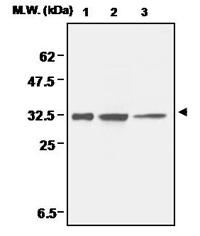 Western blot - Superoxide Dismutase 4 antibody [11G1] (ab16962)