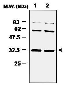 Western blot - Superoxide Dismutase 4 antibody [(3A1)] (ab16964)