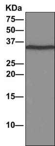 Immunoprecipitation - Anti-DNAJC9 antibody [EPR9856] (ab166612)